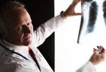 """""""جوجل"""" تتفوق على أطباء الأشعة في الكشف عن سرطان الرئة"""